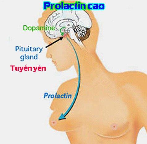 Prolactin cao uống thuốc gì
