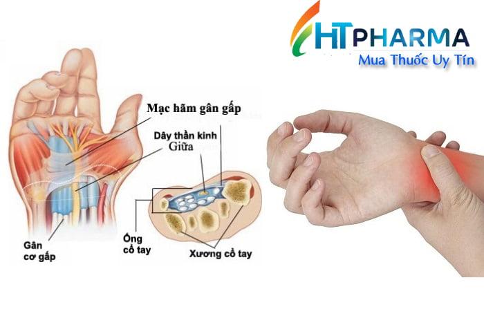 bệnh viêm bao gân ống cổ tay